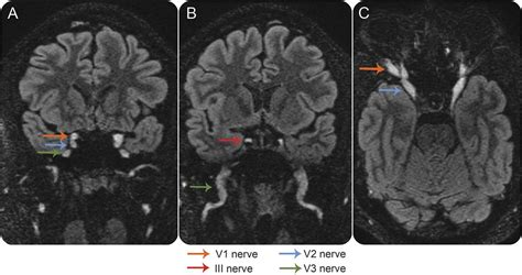 Teaching NeuroImages: Cranial nerve hypertrophy in IgG4