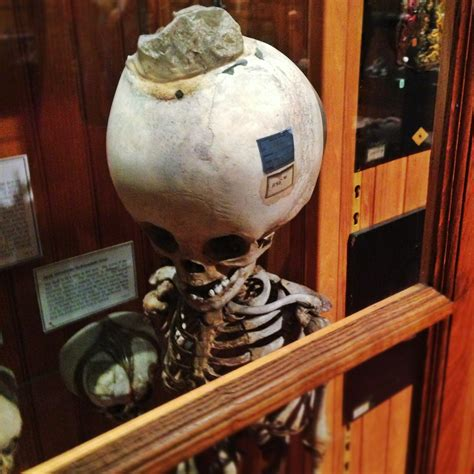 A Rotting Apple Field Trip to the Mutter Museum